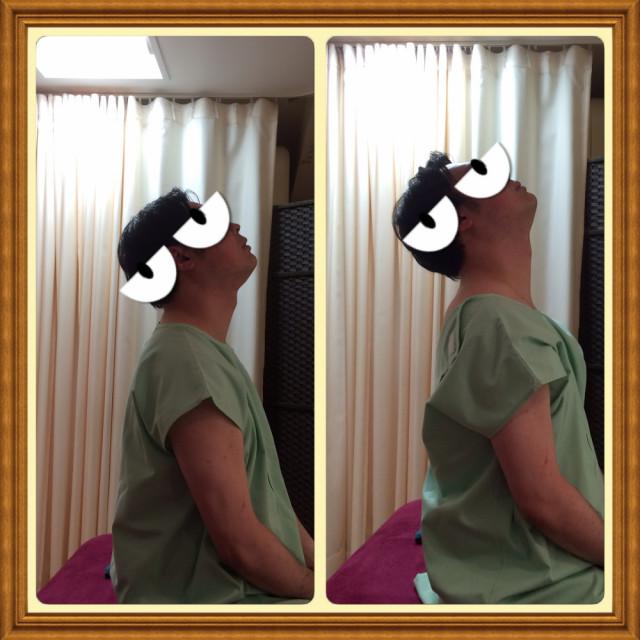 【首の痛み】ストレートネックで来院